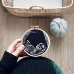 She Embroidered Her Ultrasound – So Unique!