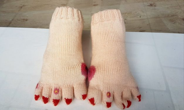 Gross! This Funny Foot Yarn Bomb is a Little Too Real … Blisters and Bunions Included!